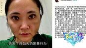 蒋劲夫女友被曝打掉两颗牙齿 东京警视厅对蒋劲夫发逮捕令!
